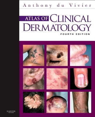 Atlas of Clinical Dermatology By Du Vivier, Anthony